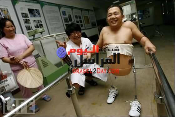 صينى يعيش بنصف جسد