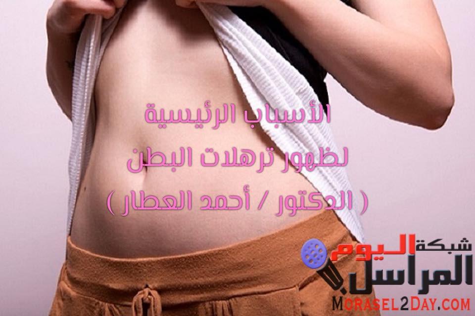 الأسباب الرئيسية لظهور ترهلات البطن :-