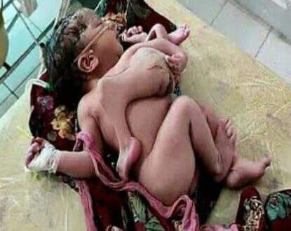 سيدة هندية تضع طفلة بـ 4 أرجل و3 أذرع