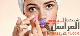 التخلص من آثار حب الشباب طبيعياً مع الدكتور / أحمد العطار