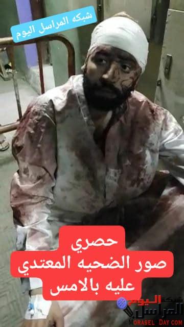 تدنيس بيوت الله بقريه منشاه عبدالله بالاعتداء على شاب وتقطيعه باسلحه بيضاء